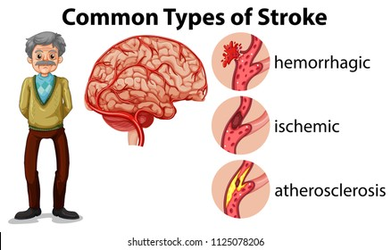 And Old Man and Types of Stroke illustration