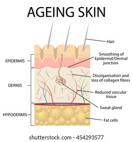 Old skin anatomy characterized by presence of age spots and wrinkles caused by loss of collagen fibers, atrophy of epidermis and blood vessels.