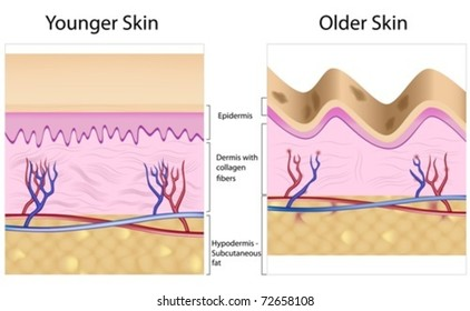 Old skin anatomy characterized by presence of age spots and wrinkles caused by loss of collagen fibers, atrophy of epidermis and blood vessels