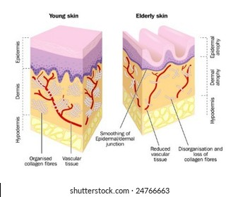 Old and young skin - labeled
