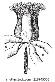 Operation of phimosis by incision. vintage engraved illustration. Usual Medicine Dictionary - Paul Labarthe - 1885.