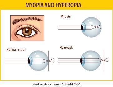 hyperopia és myopia hogyan kell kezelni