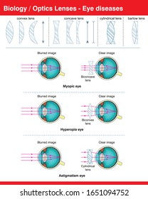 Optical lenses and eye diseases for science and biology