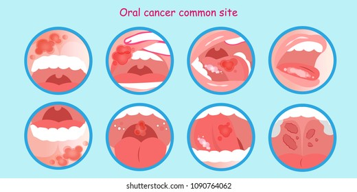 oral cancer commom site on the blue background