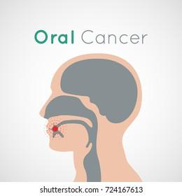 Oral Cancer vector icon design illustration