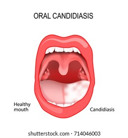 Oral candidiasis. oral thrush. healthy mouth and tongue with candidiasis infection