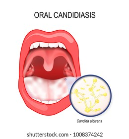 oral candidiasis. oral thrush that occurs in the mouth. mycosis (yeast infection) of fungal Candida albicans on the mucous membranes of the mouth.