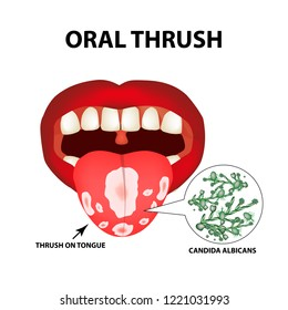 Oral thrush. Candidiasis on the tongue. Fungus in the mouth. Infographics. Vector illustration on isolated background.