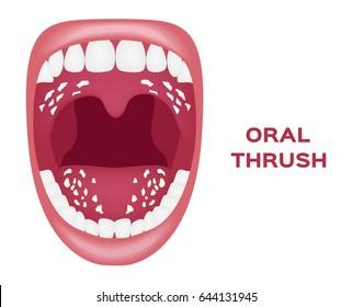 oral thrush vector . white tongue