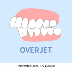 orthodontics  illustrations ; crowding, opposite occlusion, open bite, maxillary anterior protrusion, cavities, dentition, overjet