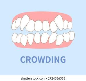 orthodontics  illustrations ; crowding, opposite occlusion, open bite, maxillary anterior protrusion, cavities, dentition