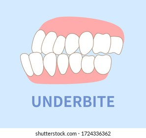 orthodontics  illustrations ; crowding, opposite occlusion, open bite, maxillary anterior protrusion, cavities, dentition, underbite