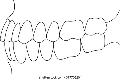 orthognathic dental occlusion on white background