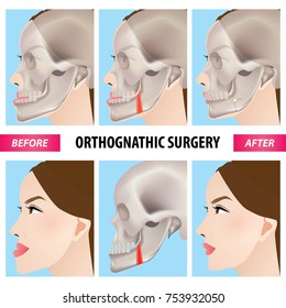 Orthognathic surgery vector illustration