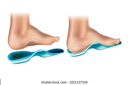 Orthopedic Insole.  Orthotic Arch Support
