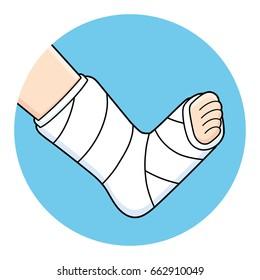 Orthopedic plaster or fiberglass cast, broken leg, bone fracture, vector icon.