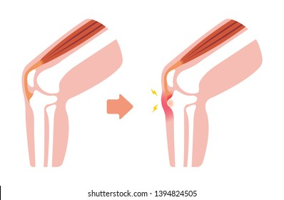 Osgood-schlatter disease (knee joint disease) illustration (no text)