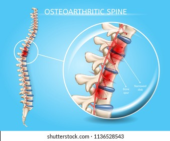 Osteoarthritic Spine Vector Medical Scheme with Magnification of Vertebral Column Area Affected by Disease, Pain Epicenter, Inflamed and Damaged with Bone Spur Narrowed Disk Realistic Illustration