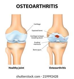1. fokozatú térdízület osteoarthritis. Könyökízület