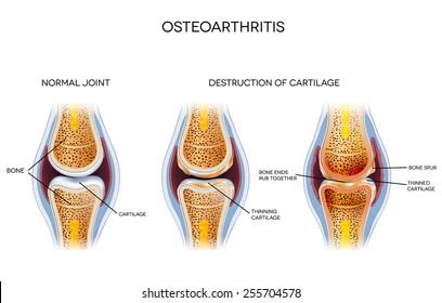 Osteoarthritis, destruction of cartilage. Healthy joint and unhealthy joint anatomy.