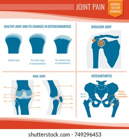 Osteoarthritis and rheumatism joint pain medical vector infographic. Arthritis and rheumatism, osteoarthritis disease, medical orthopedic illustration