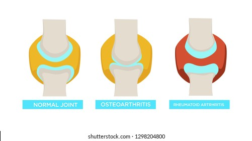 Osteoarthritis rheumatoid arthritis and normal joint vector rheumatology medicine and treatment bones disease or injury healthcare and illness human skeleton part medical problem skeletal system