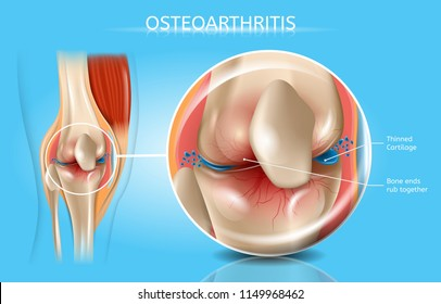 Osteoarthritis Vector Medical Poster with Magnification of Thinned Cartilage, Bone Ends Rub Together in Damaged Human Knee Joint Realistic Illustration. Musculoskeletal System Disease, Joints Injuries