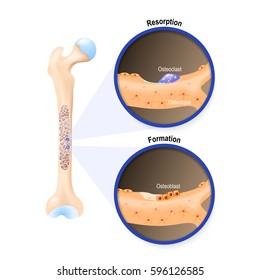 Osteoblast and osteoclast. The bone remodeling process. In a healthy body, osteoclasts and osteoblasts work together to maintain the balance between bone loss and bone formation.