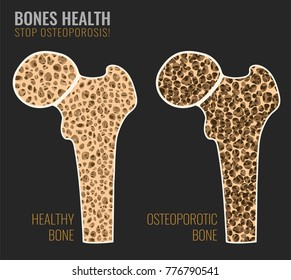 Osteoporosis cross section image. Osteoporosis bone and healthy bone in comparison isolated on a dark grey background. Vector illustration useful for medical, educational or scientific graphic design.