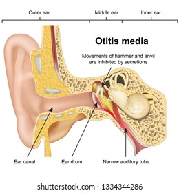 Otitis media ear disease 3d medical vector illustration on white background
