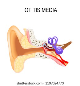 Otitis media is a inflammatory diseases of the middle ear. Human anatomy. Vector illustration for medical use