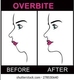 Overbite Jaw Surgery