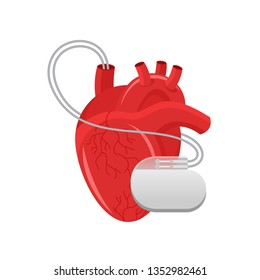 Pacemaker illustration - human heart and cardio implant - vector isolated anatomic medical picture