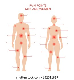 Pain points on male and female body, sensitive spots for medical treatment, educational poster. Vector flat style illustration isolated on white background