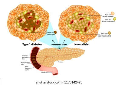 The pancreas has many islets that contain insulin-producing beta cells and glucagon-producing. Type 1 diabetes ( Beta cell destroyed).