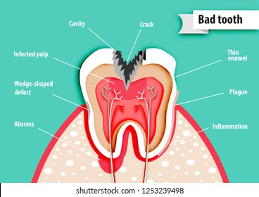 Paper art of health science about bad tooth  vector