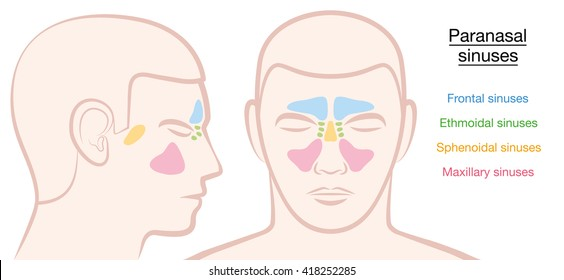 Paranasal sinuses on a male face in different colors - frontal, ethmoidal, sphenoidal and maxillary sinuses. Isolated vector illustration on white background.