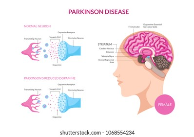 Parkinson Disease On Female Patient Detail Medical Illustration, Suitable for Medical Poster, Awareness Campaign,  Editorial, Print, and Other Health Related Occasion