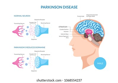Parkinson Disease On Male Patient Detail Medical Illustration, Suitable for Medical Poster, Awareness Campaign,  Editorial, Print, and Other Health Related Occasion