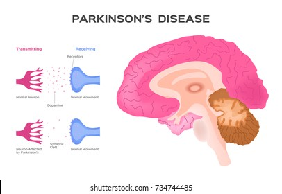 Parkinson's Affected neuron . Graphic  vector