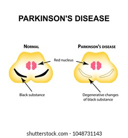 Parkinson's disease. Degenerative changes in the brain are a black substance. Vector illustration on isolated background.