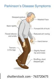 Parkinson's Disease Symptoms. Illustration about health problem of elderly people.