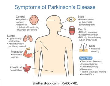 Parkinson's disease symptoms and signs. Illustration about medical diagram.
