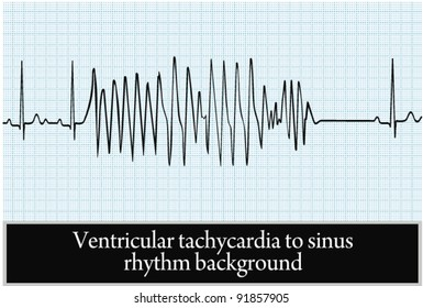 paroxysm of ventricular tachycardia in sinus rhythm background. vector. professional information