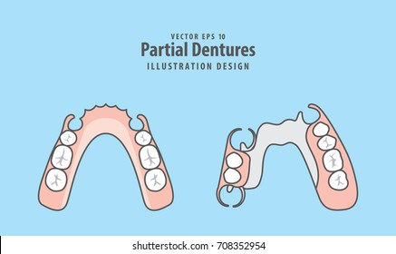 Partial Dentures illustration vector on blue background. Dental concept.