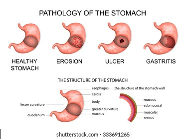 pathology of the stomach. anatomy of the stomach