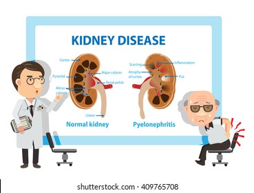 Patients and doctors Viewing diagrams Pyelonephritis. Vector illustration.