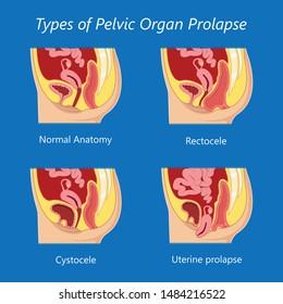 Pelvic floor prolapse type uterine uterus biofeedback pelvic floor treatment stage degree Kegel exercise surgery surgical therapy disorder cystocele urethrocele vaginal vault enterocele urethral