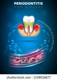 Periodontitis, inflammation of the gums bacteria can enter in to the blood stream and initiate complications in other parts of body, such as stroke, diabetes and heart disease