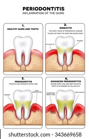 Periodontitis and inflammation of the gums. Healthy tooth then Gingivitis at the end advanced Periodontitis